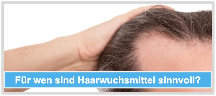Für wen sind Haarwuchsmittel sinnvoll
