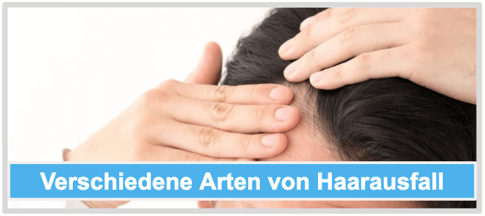 Haarwuchsmittel Verschiedene Arten von Haarausfall