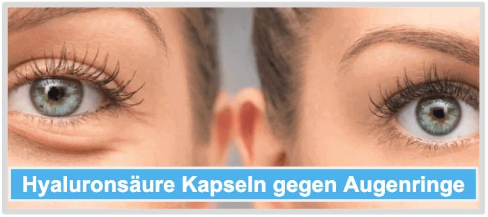 Hyaluronsäure Kapseln Augenringe Anwendungsgebiete