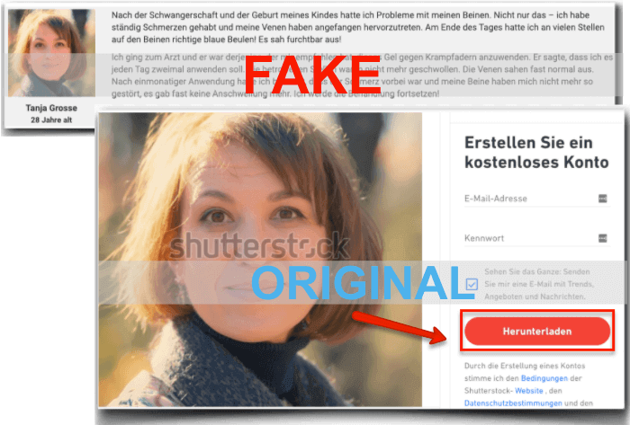 Varikosette Fake Erfahrungen Bewertungen