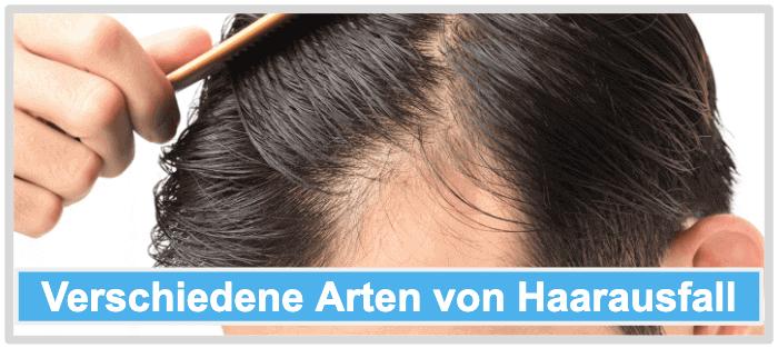 Verschiedene Arten von Haarausfall