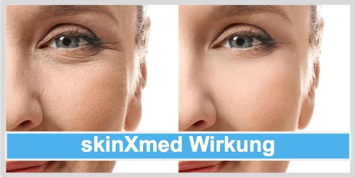 skinXmed Wirkung