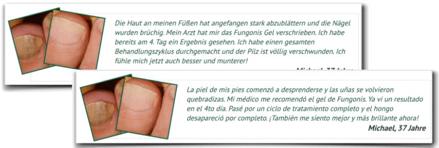Fungonis Gel gefälschte Erfahrungsberichte