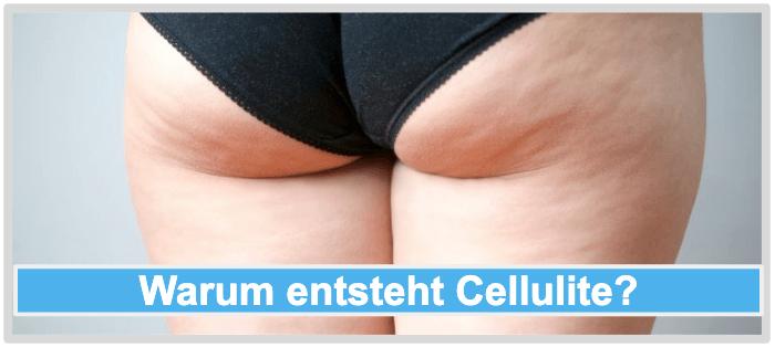 Warum entsteht Cellulite
